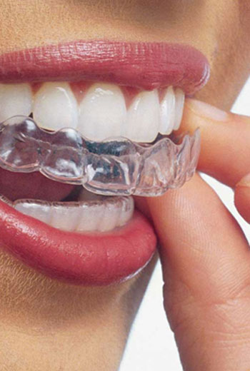 Orthodontics, Braces & Invisalign, Comox Dentist